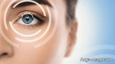 عمل فمتولیزیک چشم و شناخت مزایا و عوارض آن