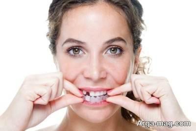 درمان لق شدن دندان با زردچوبه