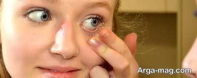 آشنایی با روش ارتوکراتولوژی و میزان تاثیر این روش در درمان نزدیک بینی و آستیگمات