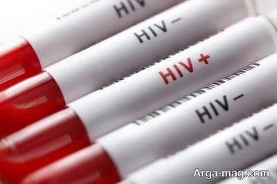 ارتباط بیماری ایدز و جوش مقعدی