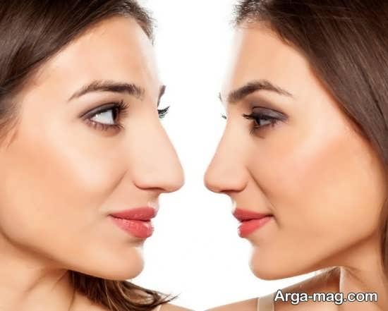 انواع اثرات و عوارض بعد از جراحی بینی