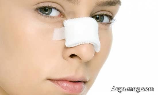 انواع مشکلات مختلف بعد از جراحی بینی