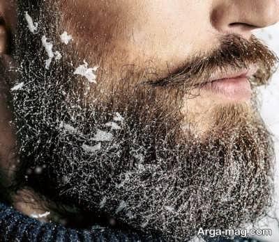 درمان شوره ریش با چند ترفند
