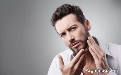 علل بروز شوره ریش