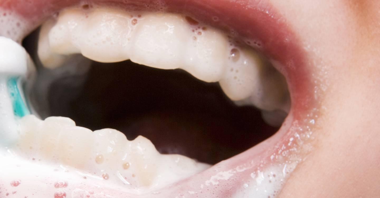 آشنایی با نحوه از بین بردن لکه دندان