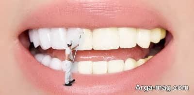 استفاده از سرکه سیب برای تمیزی دندان ها