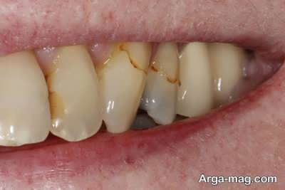 چگونگی از بین بردن لکه دندان