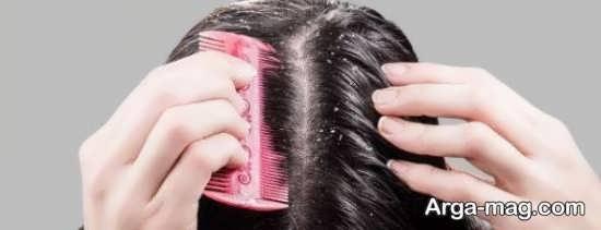 روش های طبیعی جلوگیری از ریزش مو