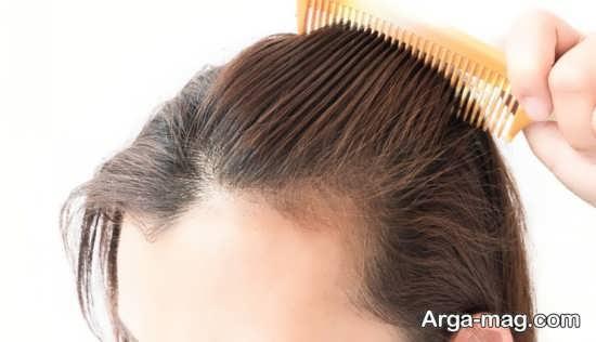 روش های خانگی جلوگیری از ریزش مو