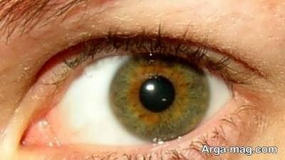 ملتهب شدن چشم