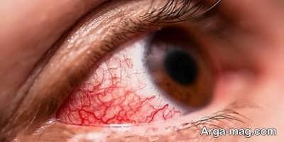 آنچه در مورد ملتهب شدن چشم باید بدانید