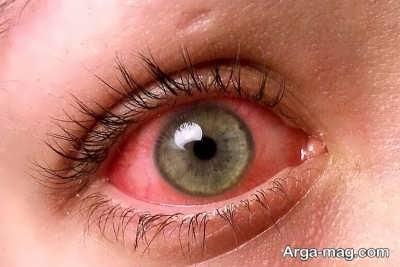 آشنایی با التهاب چشم