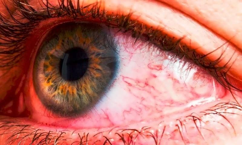 بررسی انواع التهاب چشم و نشانه های آن