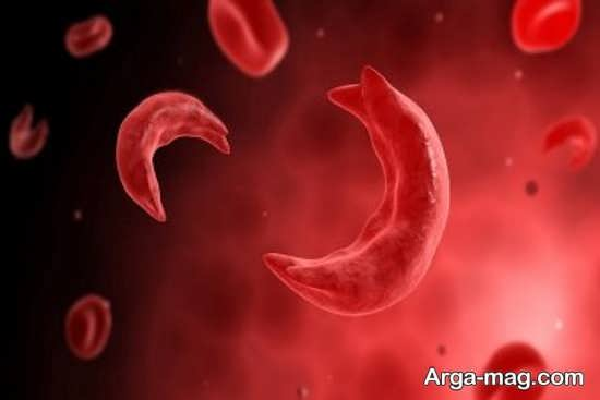 علائم رایج کم خونی پرنیشیوز