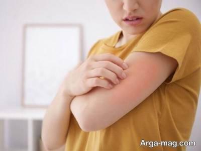 درمان جوش روی بازو ببا چند راهکار امتحان پس داده در خانه