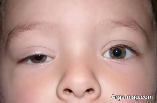 نشانه های وجود اختلال در بینایی کودکان