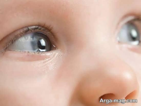 نشانه های وجود مشکل در چشم کودکان