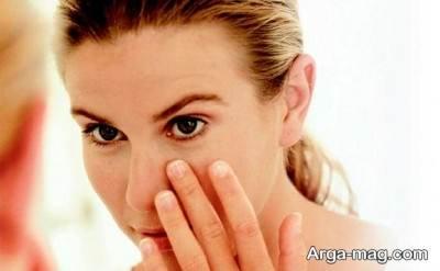 برای از بین بردن چروک دور چشم باید رژیم مناسبی برای پوست در نظر بگیرید.