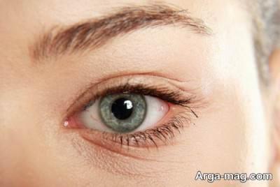 خواب مناسب به کاهش چین و چروک های پوستی کمک می کند.