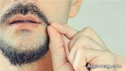 اختلالات کندن مو