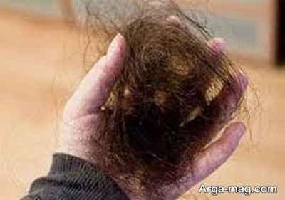 علت کندن مو چیست