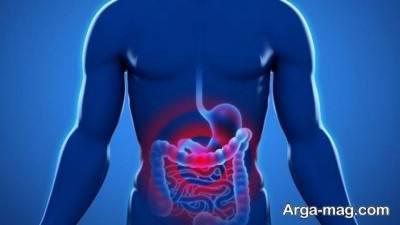 پولیپ یکی از بیماری هایی می باشد که منجر به ایجاد مدفوع خونی می شود.