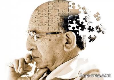 آشنایی با اختلال آلزایمر