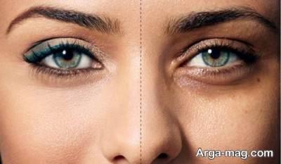 درمان سیاهی دور چشم با رزماری
