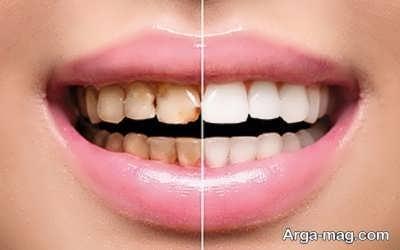 خاصیت توت فرنگی بر دندان ها
