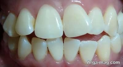 مشکلاتی که با نامرتبی دندان ها به وجود می آید