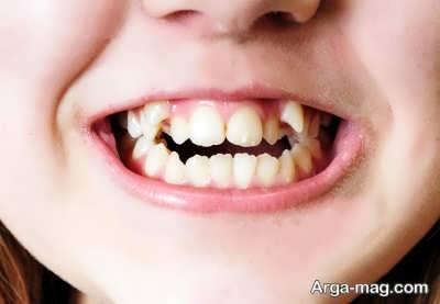 نحوه درمان کراودینگ دندان