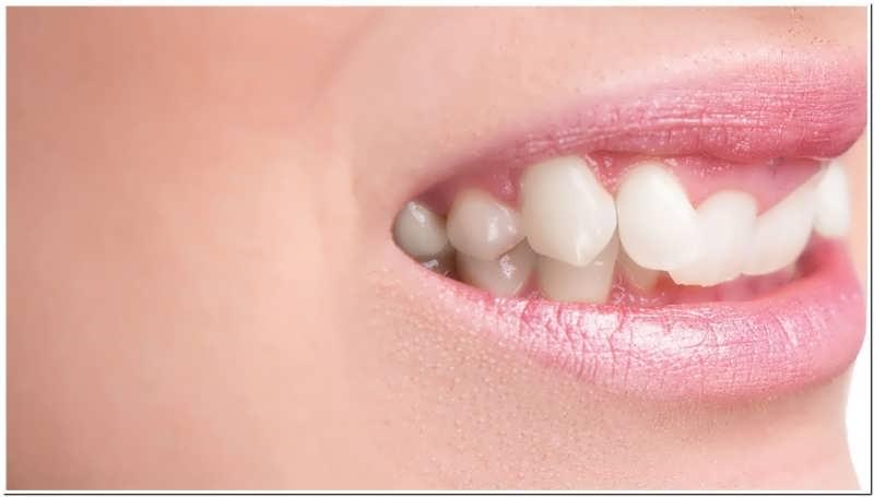 کراودینگ دندان و روش های درمان آن