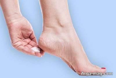 درمان خانگی خارش کف پا