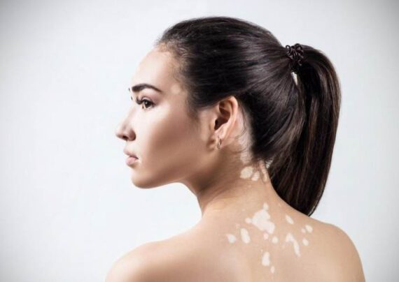 کاهش ملانین پوست