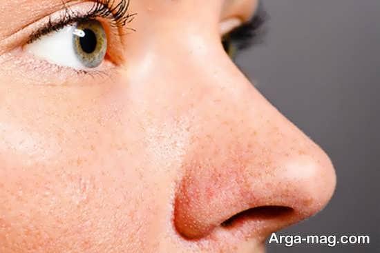 دلایل چرب شدن پوست بینی