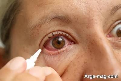 اصول درمان عارضه برگشتگی پلک