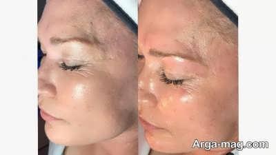چگونگی جوان سازی پوست صورت