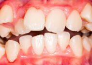 آشنایی با کراس بایت دندان