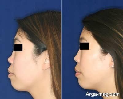 اصول لیفت بینی بدون جراحی