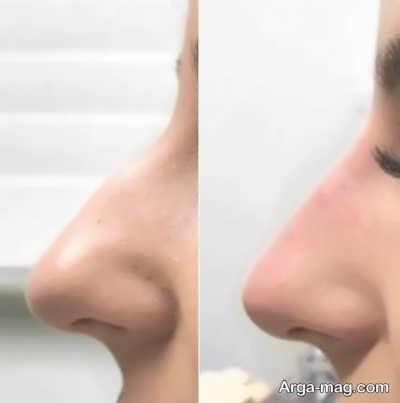 ماندگاری لیفت بینی بدون جراحی