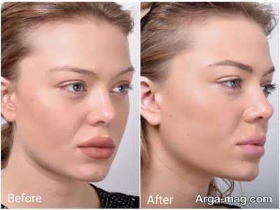 روش های مختلف لیفت بینی