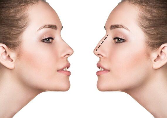 آشنایی با نحوه لیفت بینی بدون جراحی