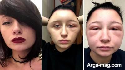 درماتیت تماسی از نشانه های مهم حساسیت به رنگ مو است.
