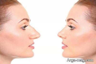 افراد مستعد برای استفاده از روش های غیر جراحی و فرم دادن به بینی کدام اند؟