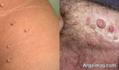 افراد مستعد برای تگ های پوستی چه کسانی اند؟