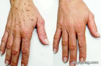 لکه های ناشی از بالا رفتن سن