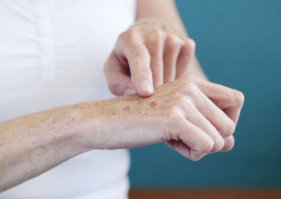 بهبود لکه های ناشی از افزایش سن