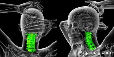 مطالعه ساختار پیچیده نخاع