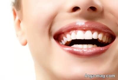 آلرژی های دندانی به ترشی