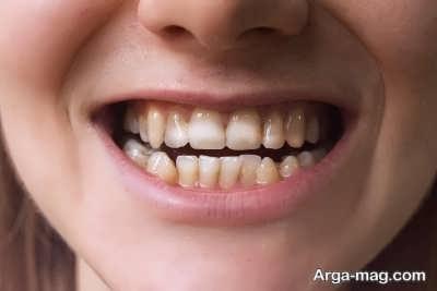 درمان تارتار و پلاک دندان